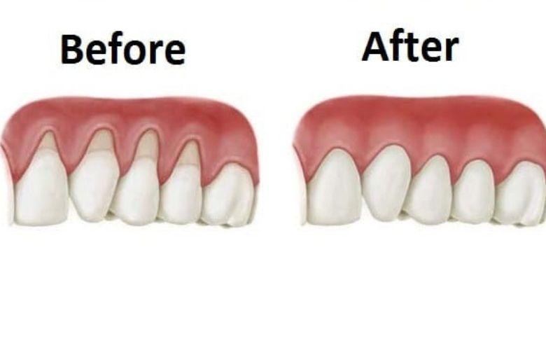 Zahnfleisch Wachsen Lassen